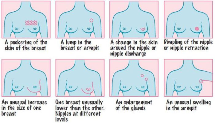 Warning Signs Breast Cancer