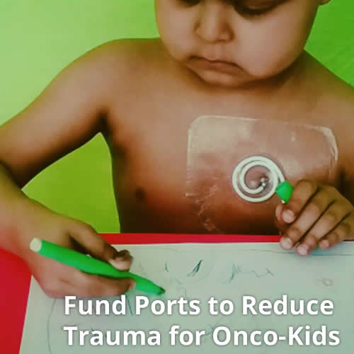 Fund Ports to Reduce Trauma for Onco-Kids