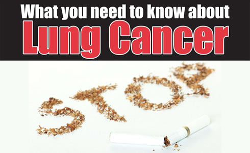 What you need to know about lung cancer